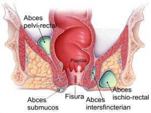 hemoragie rectala