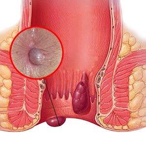 hemoroizi externi